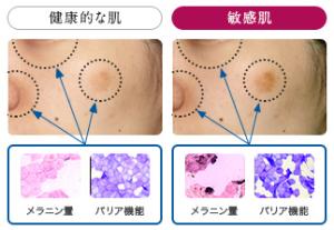 敏感肌のバリア機能-画像