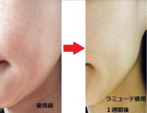 ラミューテ化粧品使用前使用後の肌-画像