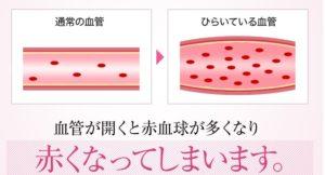 乾燥肌・敏感肌の赤みの原因-画像