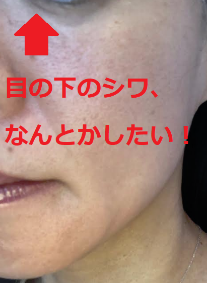 目の下の乾燥シワの写真